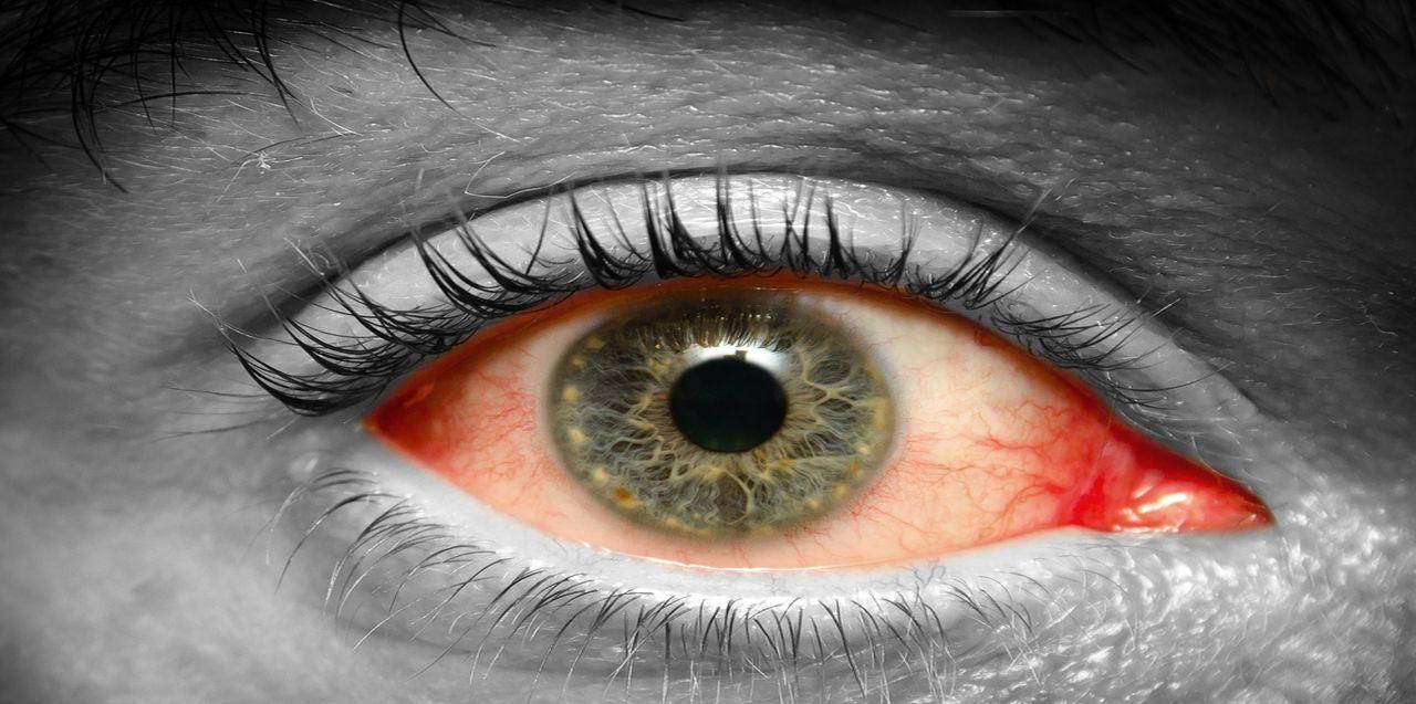3 Types of Pink eye