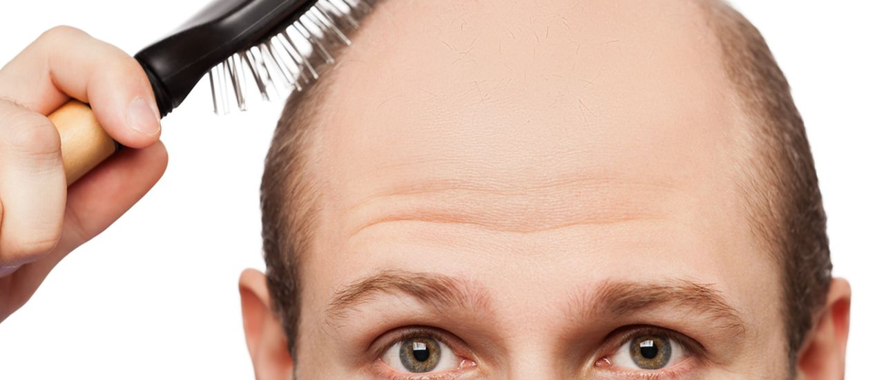 What can you do about male hair loss?