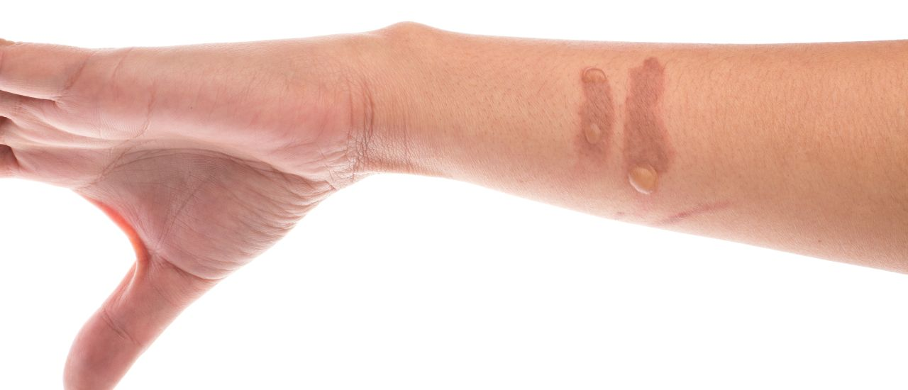 Burnt yourself? Here's how to treat minor wounds at home