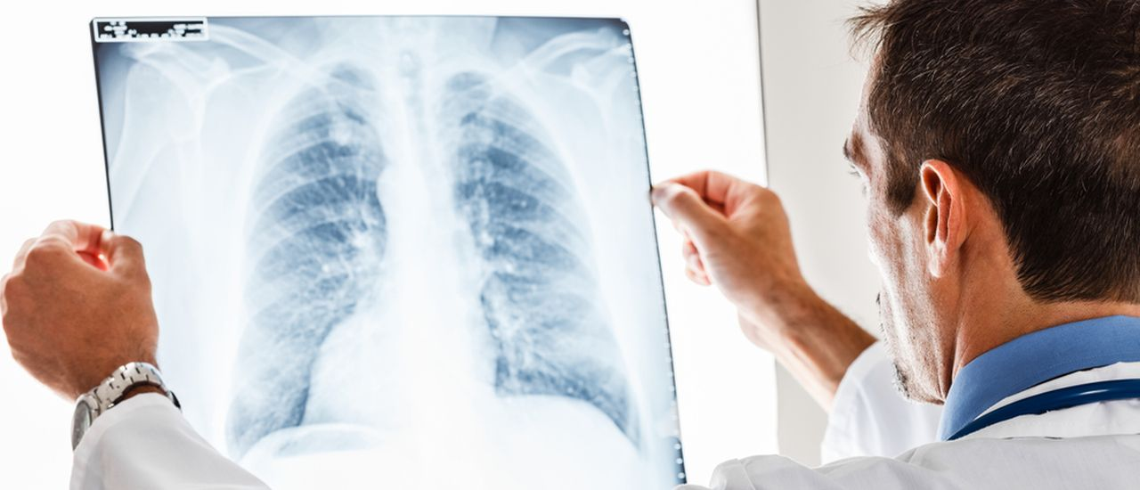 High-carb meals may reduce the effectiveness of your TB meds