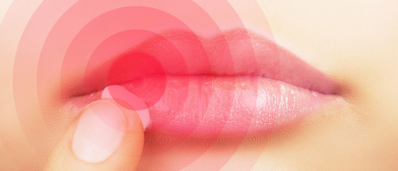 Don't let cold sores get you down this winter
