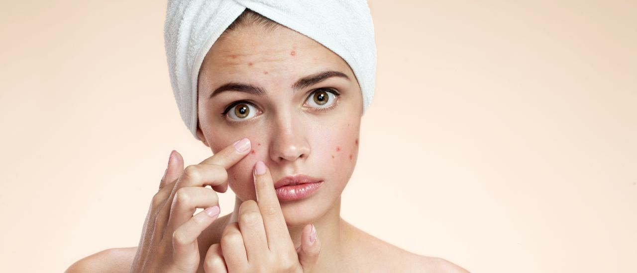 pictures How to get rid of acne, pimple redness on your chin