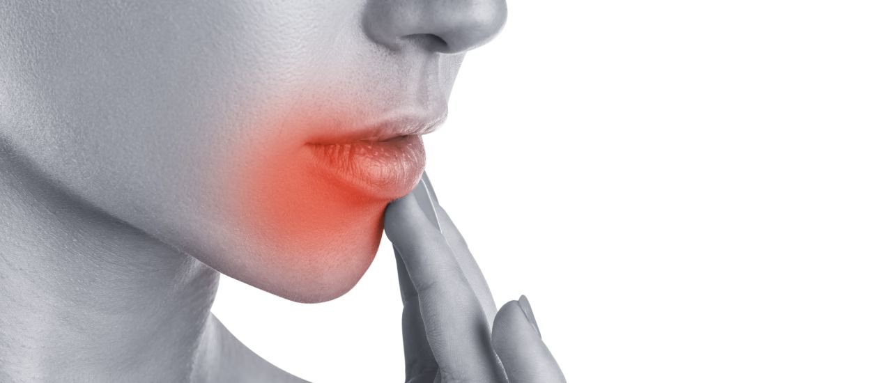 Treat cold sores in summer