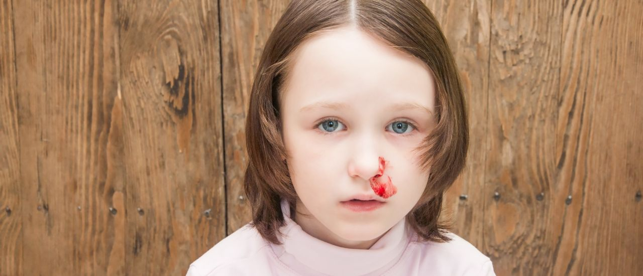 How to treat your child's nosebleed