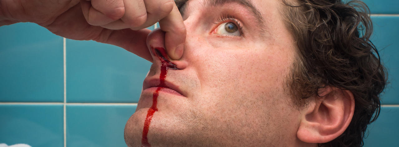 Nose bleeds – what you need to know