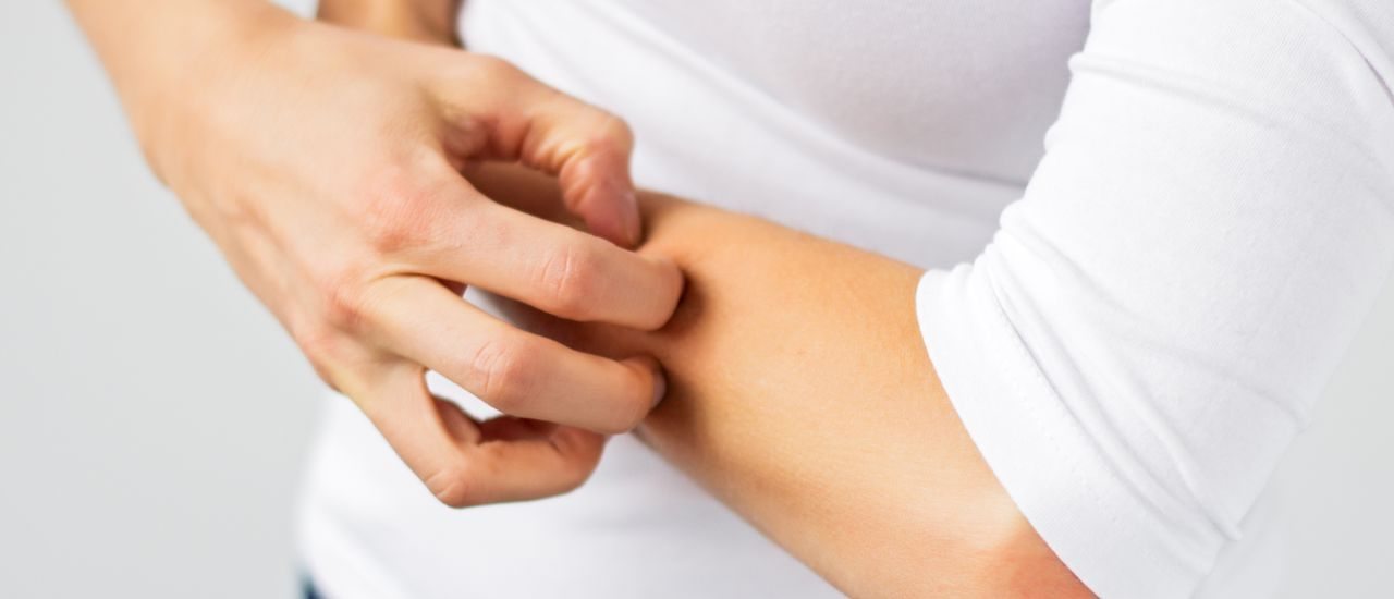 10 things to know about Eczema