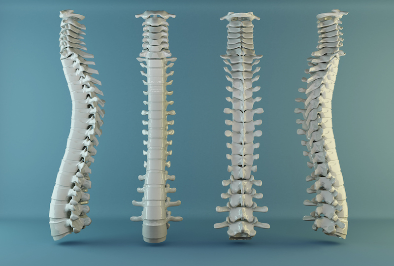 How to beat osteoporosis