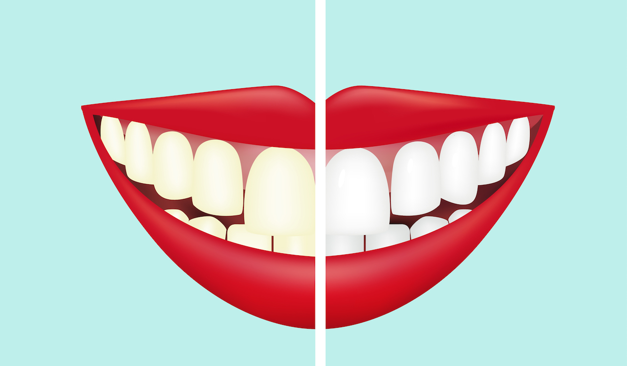 Natural ways to brighter, whiter teeth