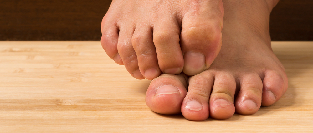 Eight ways to walk away from athlete's foot