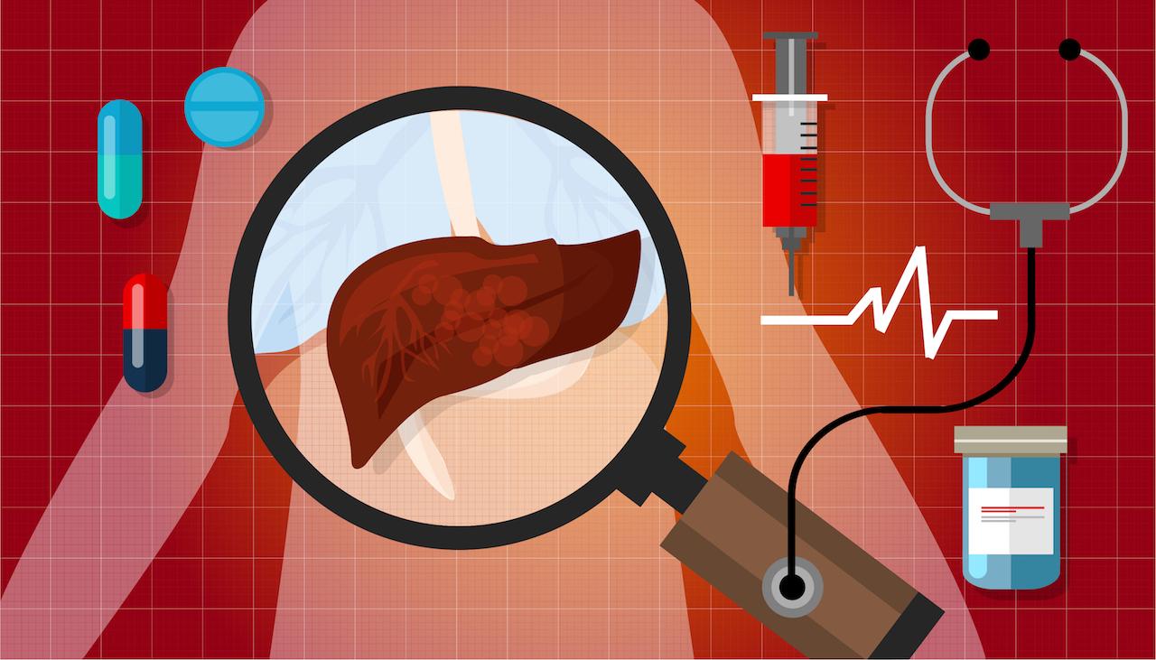 The ABCs of hepatitis