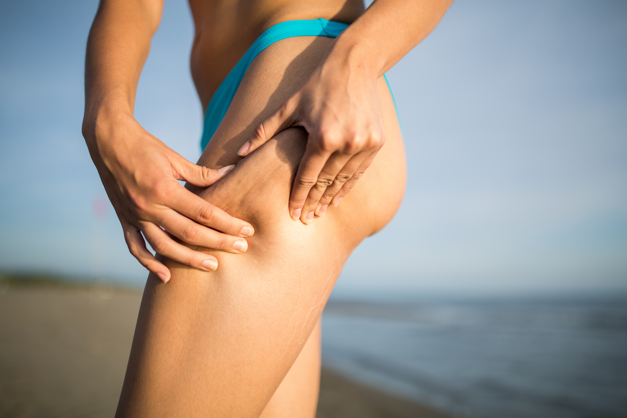 Why do I have cellulite?