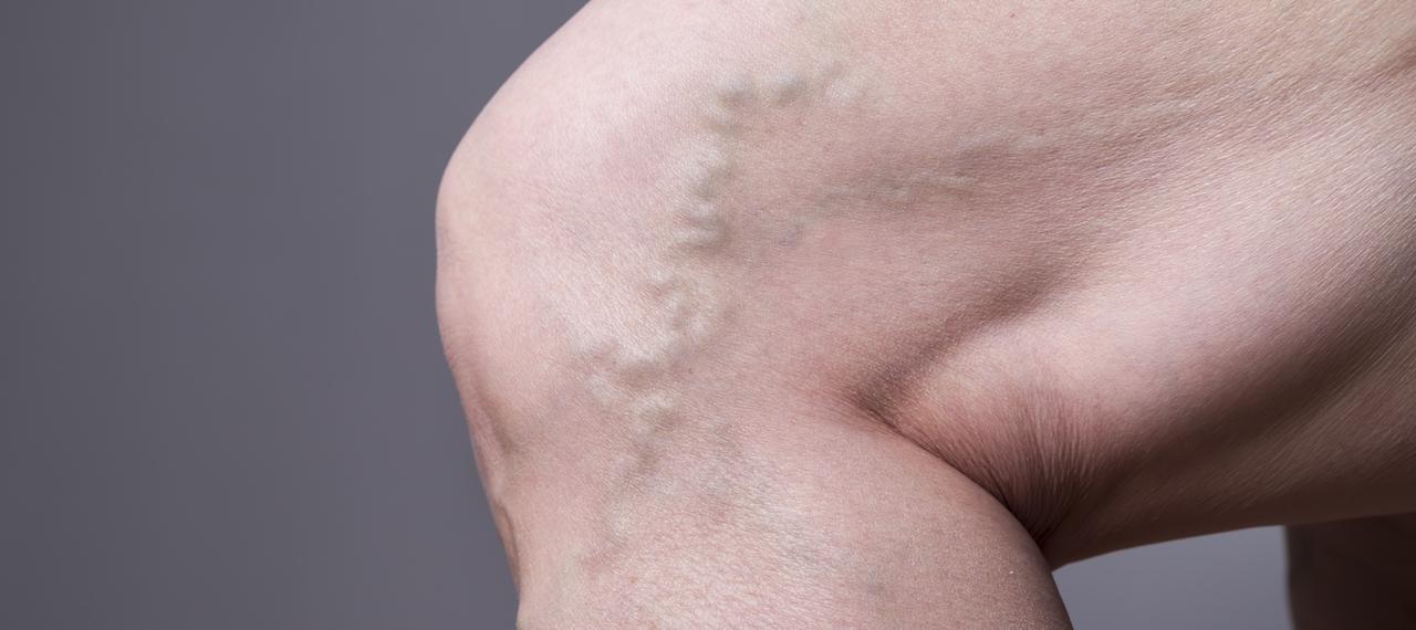 Varicose veins 101