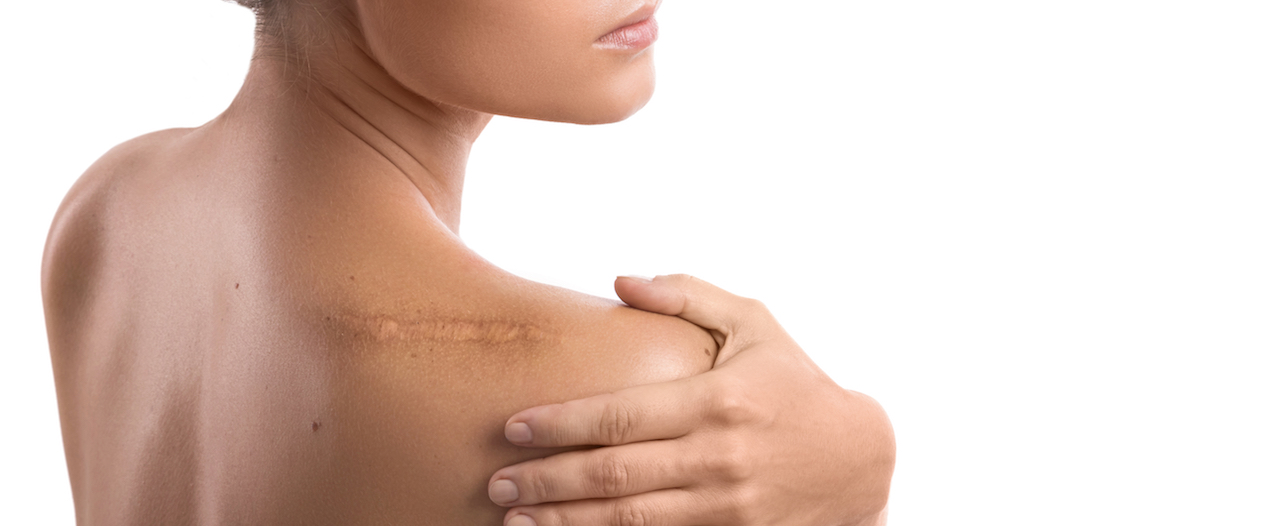 What to do to prevent the worst kind of scars