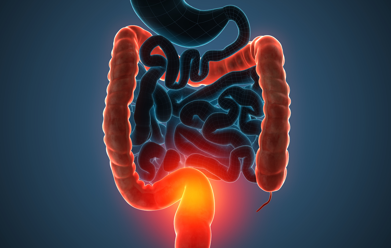 The main causes of colon cancer