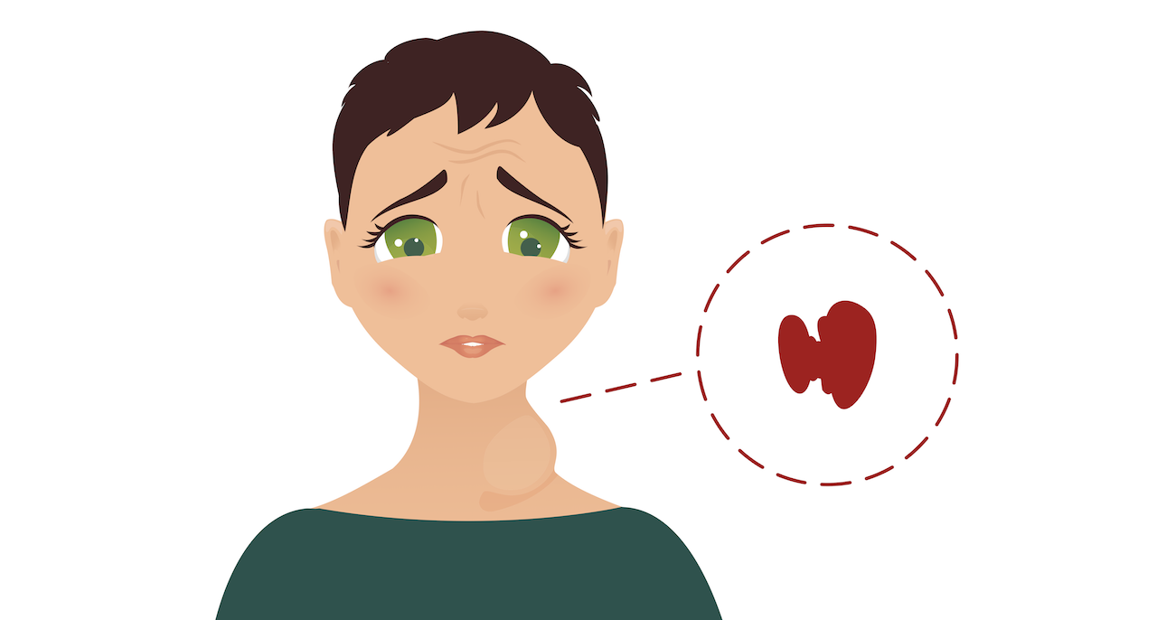 Feeling anxious often? You could have hyperthyroidism.