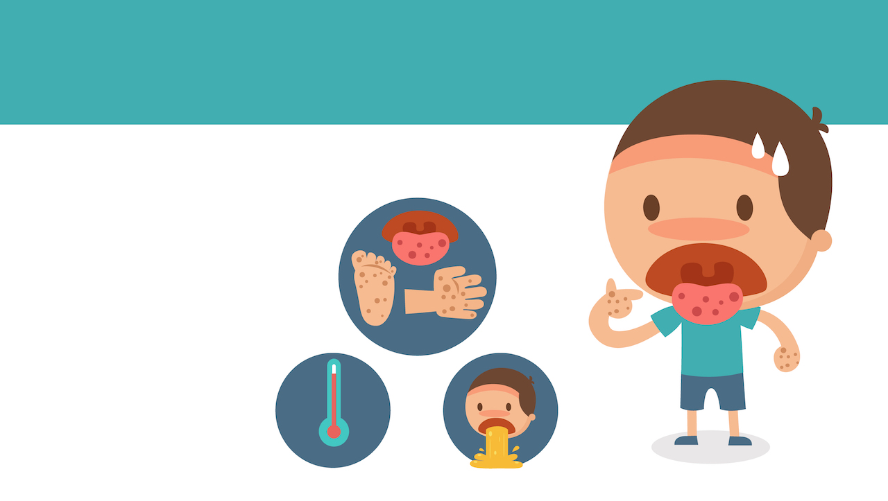 How to prevent Hand, Foot and Mouth disease