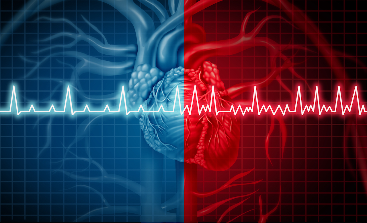 Heart palpitations : when should you worry?