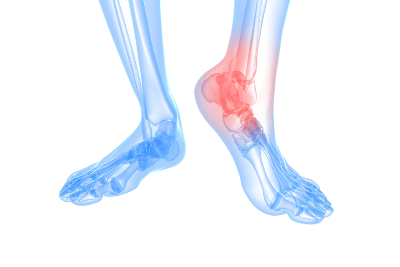 Do I need an X-ray for my ankle sprain?