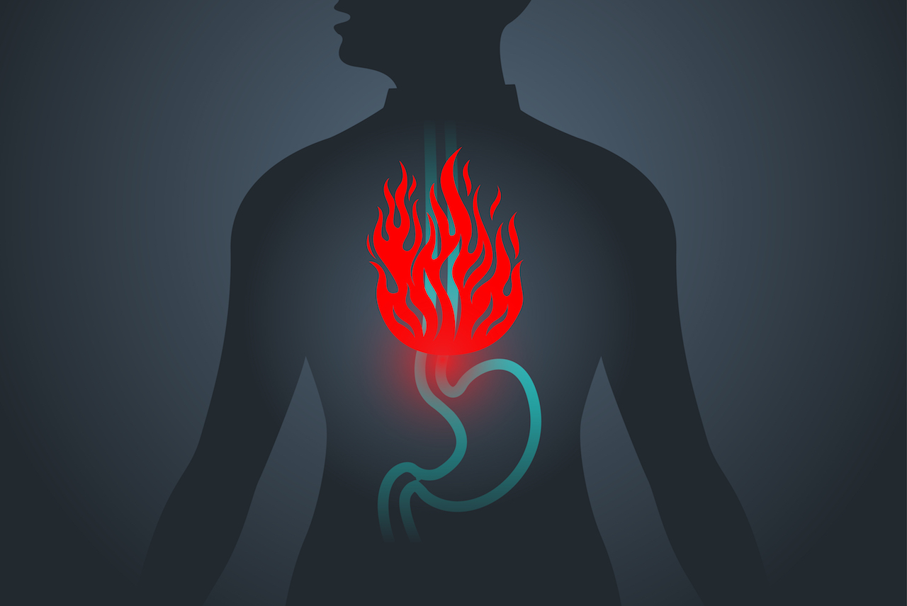 What is Gastroesophageal Reflux Disease (GERD)?