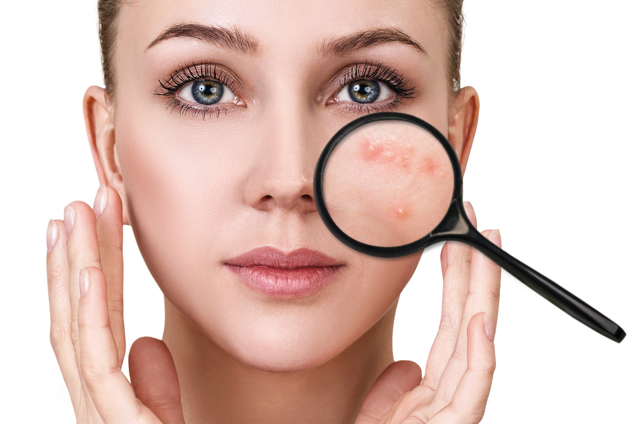 What your skin is telling you about your health
