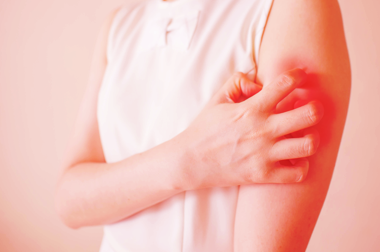 Can you treat eczema with your diet?