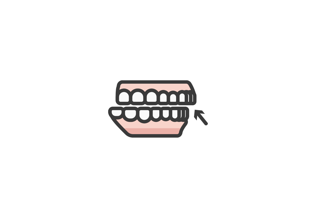 What is an overbite and how do you treat it?