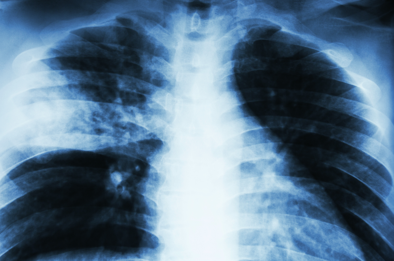 How does your doctor diagnose and treat TB?