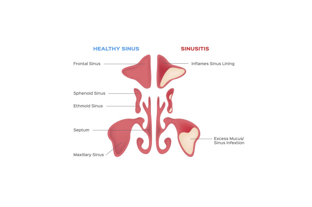 How to treat Chronic Sinusitis